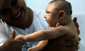 Phụ nữ mang thai cần làm gì để phòng, chống virus Zika