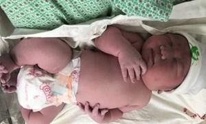 Cha mẹ vỡ òa khi đón con trai đầu lòng chào đời với cân nặng của trẻ 3 tháng tuổi