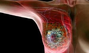 Phụ nữ nên cảnh giác với ung thư vú khi bước sang ngưỡng tuổi 30