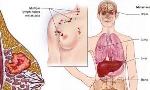 Phát hiện sớm ung thư vú để bảo vệ bạn khỏi căn bệnh nguy hiểm này