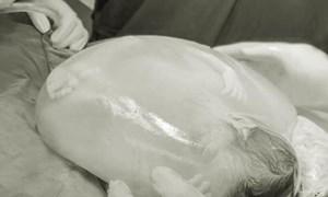 Thú vị trường hợp 1 trong 2 bé gái song sinh chào đời còn nguyên trong bọc ối