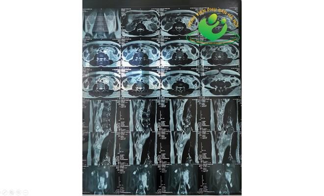 Phẫu thuật thành công bệnh nhân chửa ngoài tử cung hiếm gặp