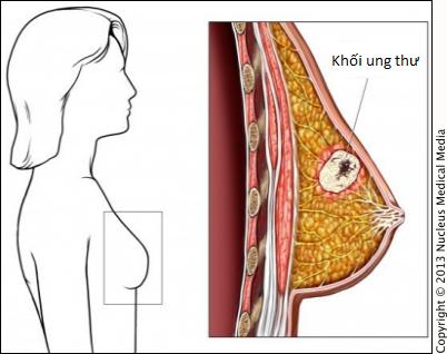 Bước sang ngưỡng 30, phụ nữ nên cảnh giác với ung thư vú
