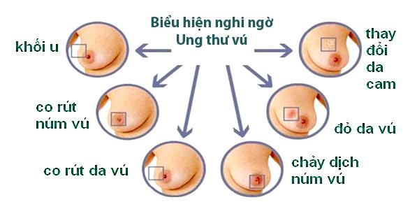 Xuất hiện khối ở vú có ý nghĩa gì ? Yếu tố nguy cơ gây Ung thư?