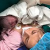 Ca mổ khó: sản phụ mổ nhiều lần, thai ivf, bệnh lý rau tiền đạo - rau cài răng lược