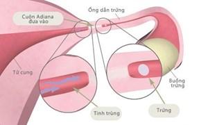 Phương pháp tránh thai vĩnh viễn