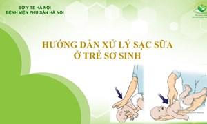 Hướng dẫn xử lý sặc sữa ở trẻ sơ sinh