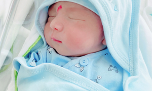 Mẹ bỉm nổi mẩn khắp người, mặt mũi sưng húp, run rẩy vì bị phản ứng với thuốc tê sau sinh