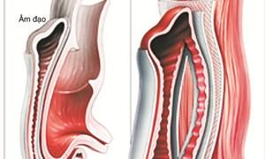 Điều trị sa trực tràng kiểu túi bằng mảnh ghép đặt sau âm đạo