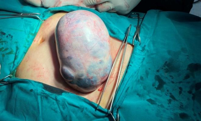70 tuổi mang khối u buồng trứng nặng trên 2kg