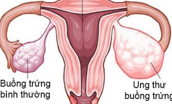 Những điều cần biết về ung thư buồng trứng