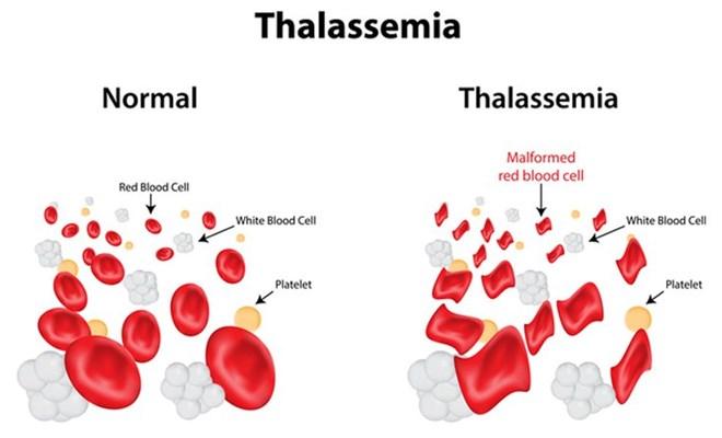 Thalassemia là gì