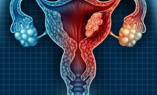U nang buồng trứng có nguy hiểm không?